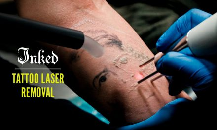 Tattoo Laser Removal – INKED